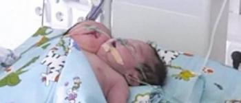 Mãe tem bebê de duas cabeças e é forçada a entregá-lo para adoção