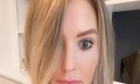 Bizarro: influenciadora tem reação a botox e fica com o olho arregalado