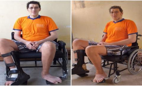 Ninão arrecada mais de R$ 149 mil para realizar cirurgia de amputação da perna e compra de prótese