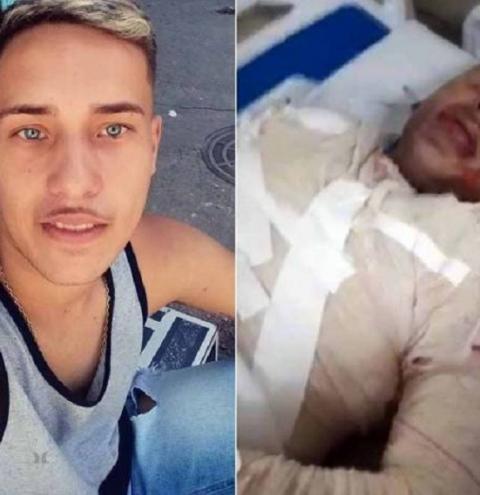 Motoboy é incendiado pela ex-namorada e tem 60% do corpo queimado