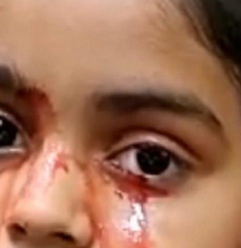 Menina que chora lágrimas de sangue intriga médicos